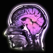 Testimonial - The Dreaded MRI Scan